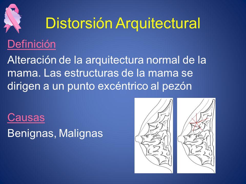 Distorsión Arquitectural