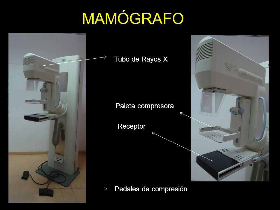 MAMÓGRAFO Tubo de Rayos X Paleta compresora Receptor