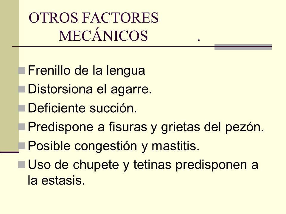 OTROS FACTORES MECÁNICOS .