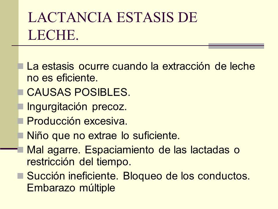 LACTANCIA ESTASIS DE LECHE.