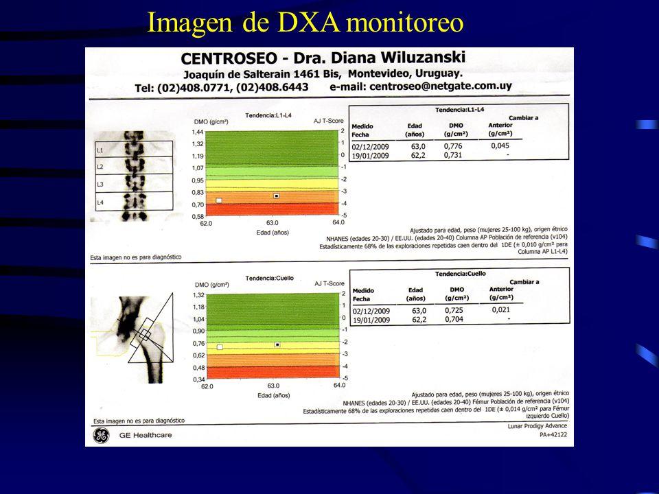 Imagen de DXA monitoreo