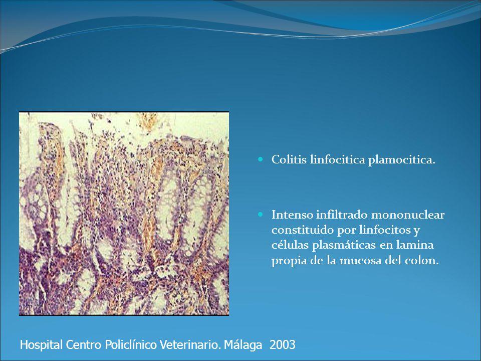 Colitis linfocitica plamocitica.