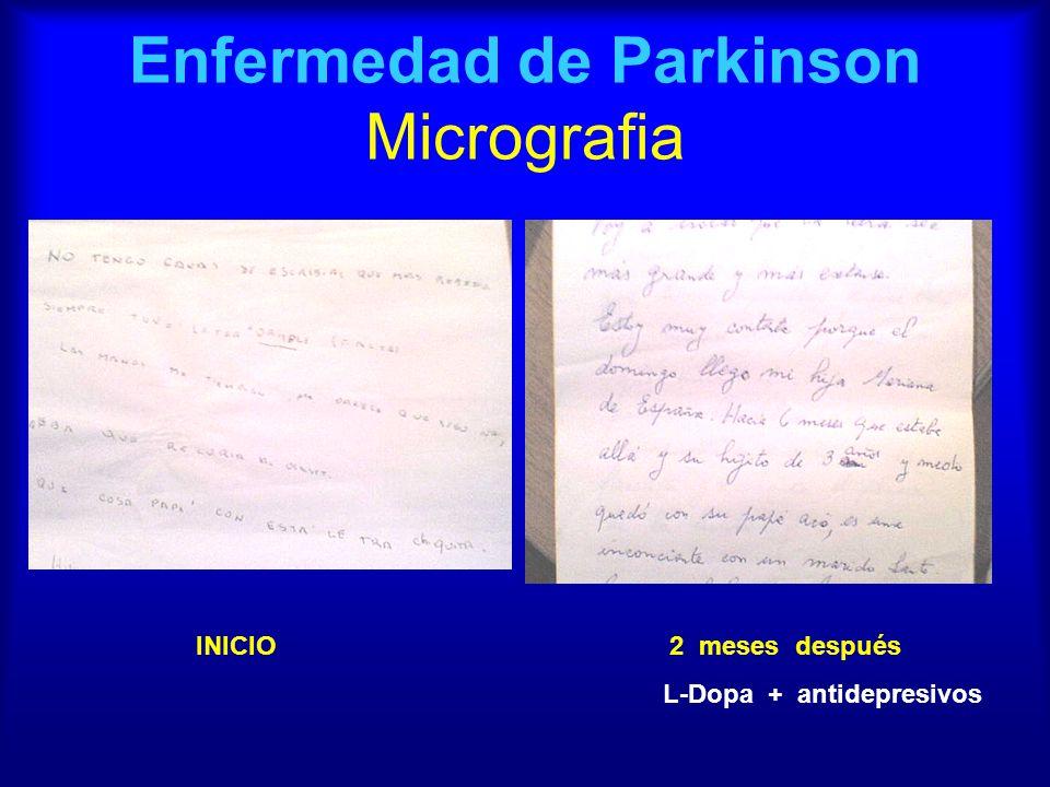 Enfermedad de Parkinson Micrografia