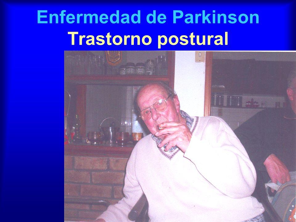 Enfermedad de Parkinson Trastorno postural