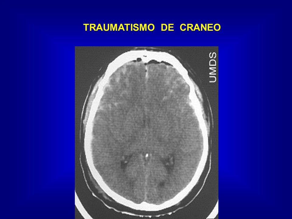 TRAUMATISMO DE CRANEO