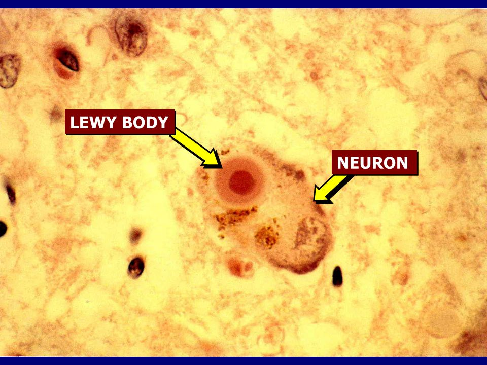 LEWY BODY NEURON