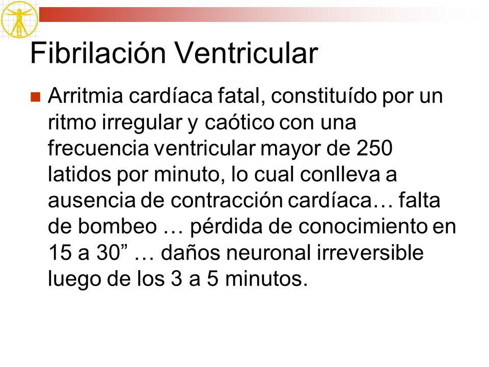 Fibrilación Ventricular