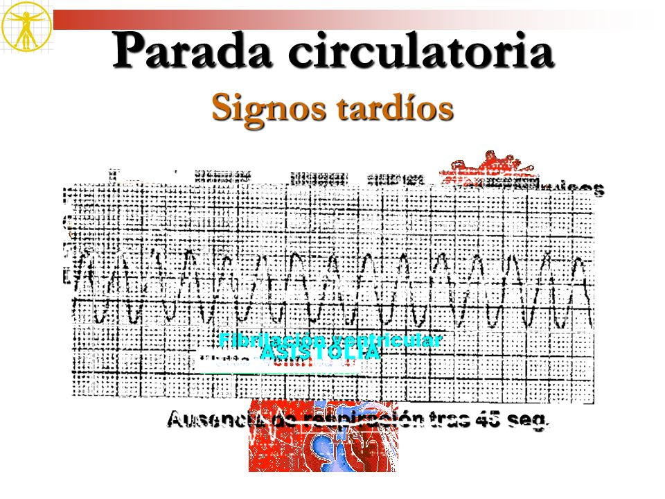 Parada circulatoria Signos tardíos