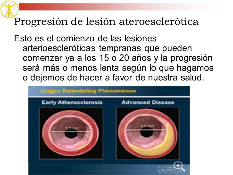 Progresión de lesión ateroesclerótica