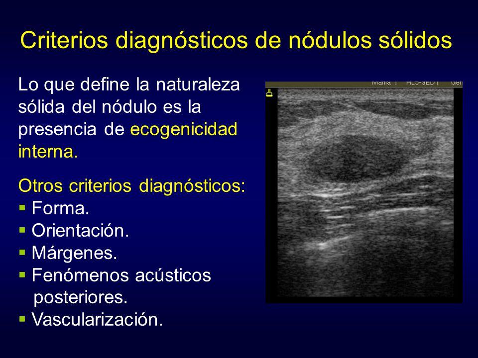 Criterios diagnósticos de nódulos sólidos