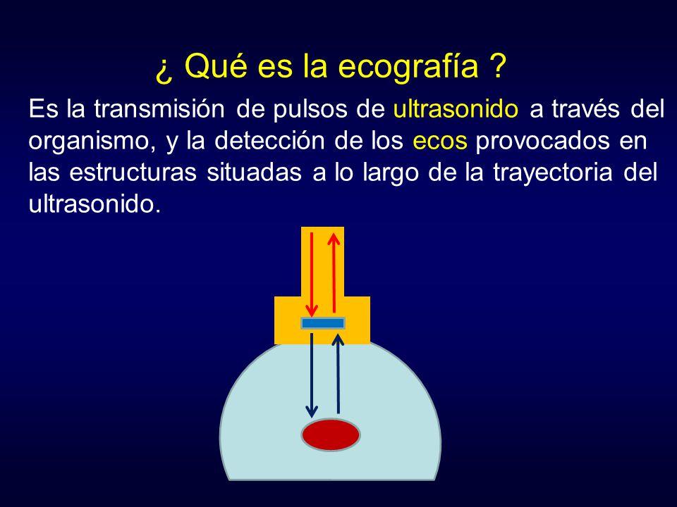 ¿ Qué es la ecografía