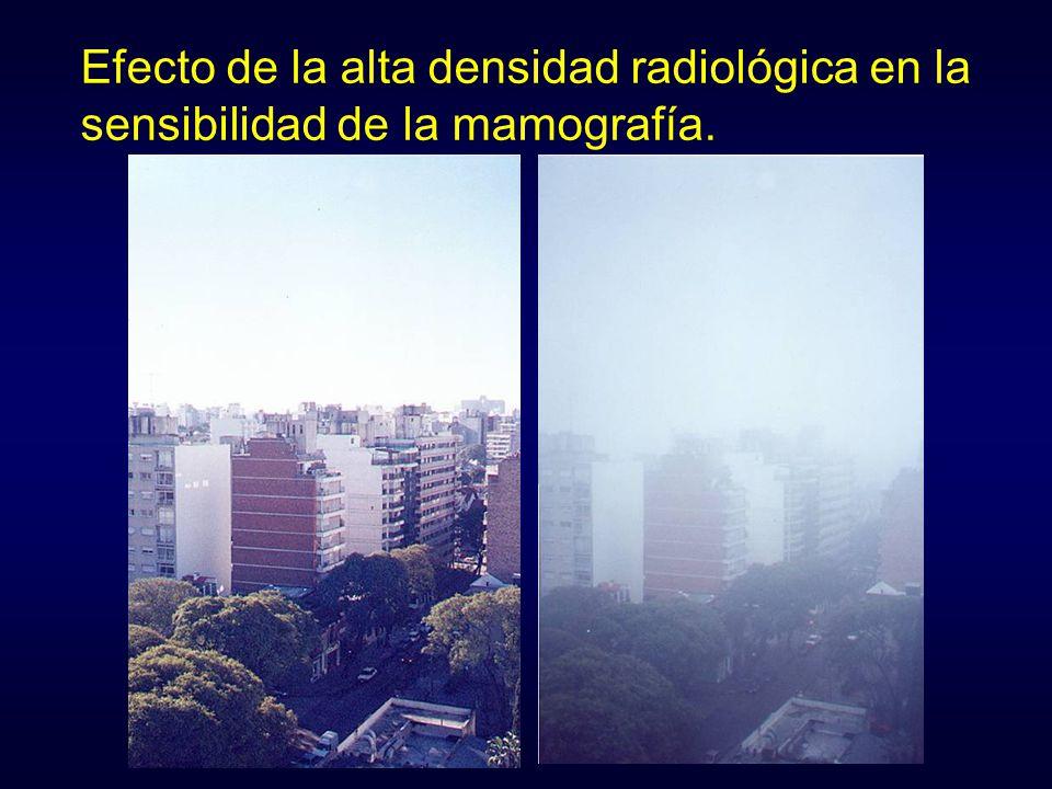 Efecto de la alta densidad radiológica en la