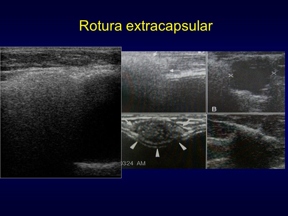 Rotura extracapsular