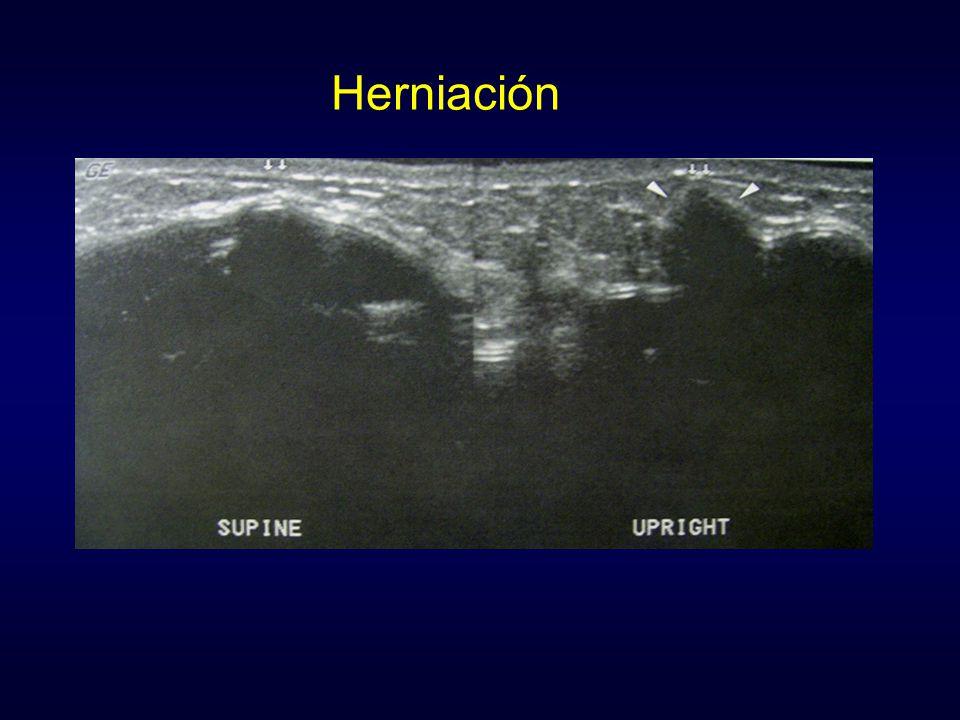Herniación