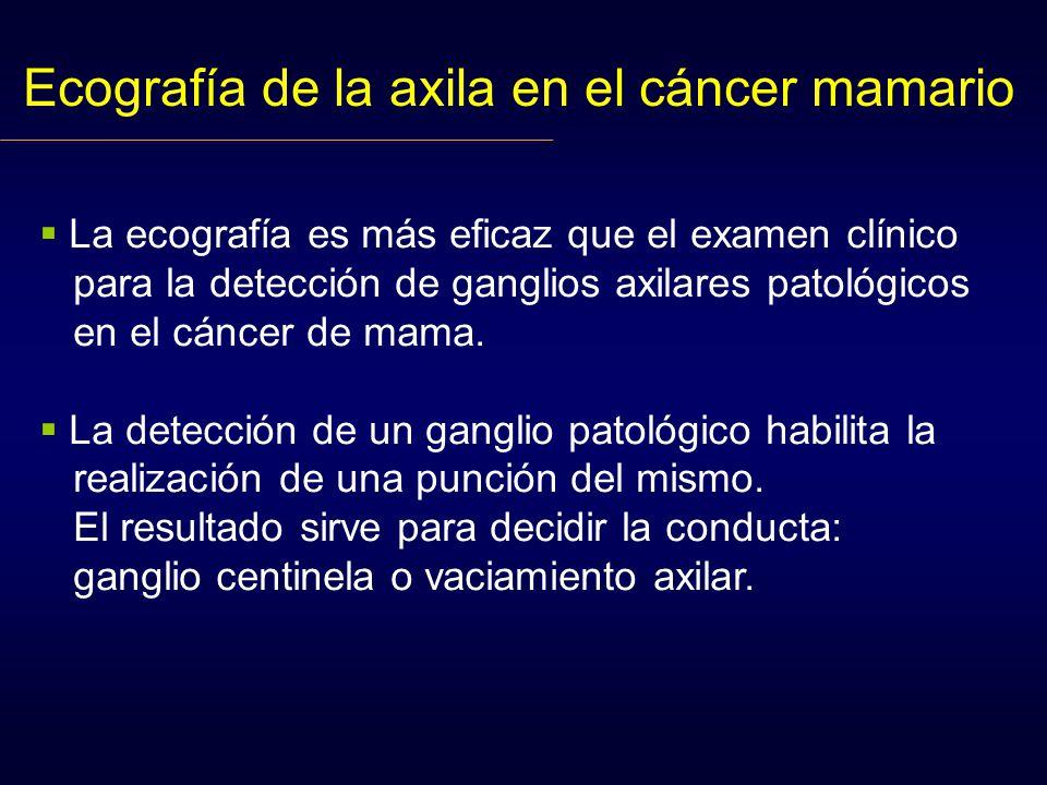 Ecografía de la axila en el cáncer mamario