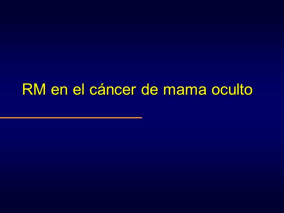 RM en el cáncer de mama oculto