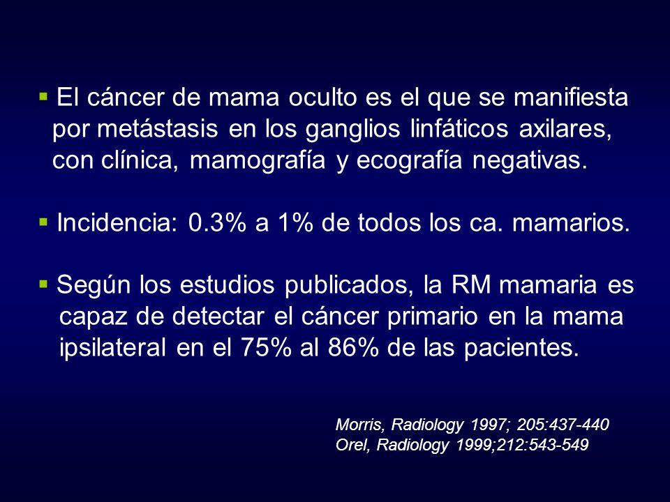 El cáncer de mama oculto es el que se manifiesta
