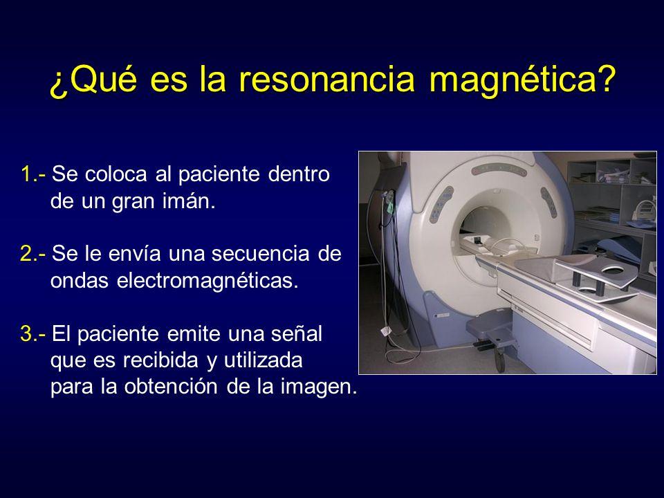 ¿Qué es la resonancia magnética