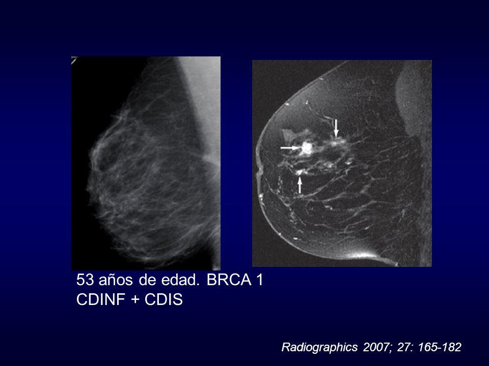53 años de edad. BRCA 1 CDINF + CDIS Radiographics 2007; 27: 165-182