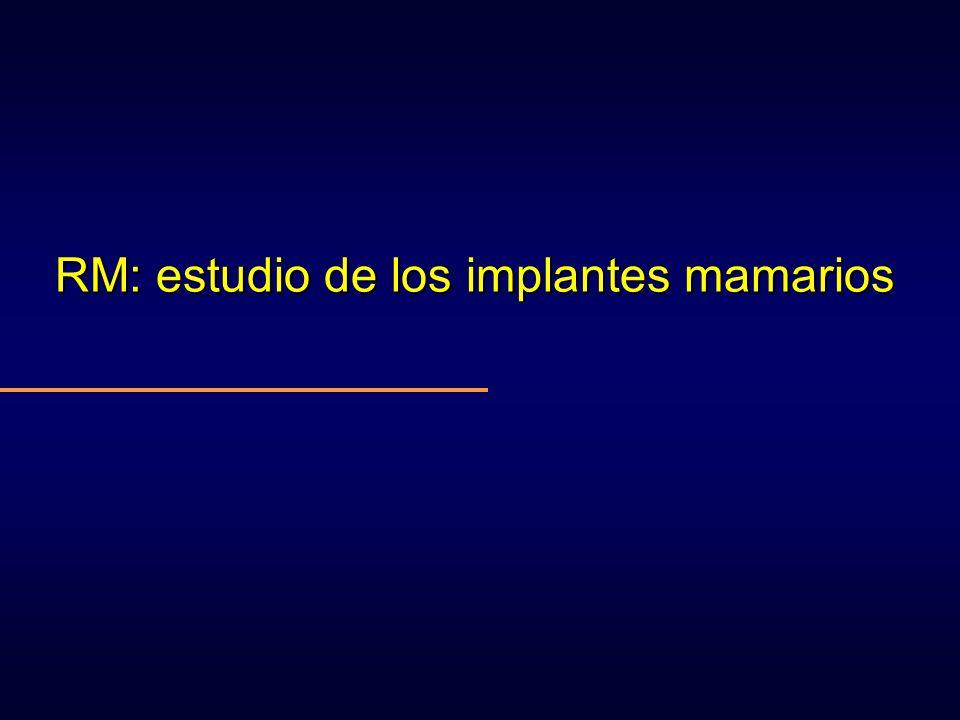 RM: estudio de los implantes mamarios