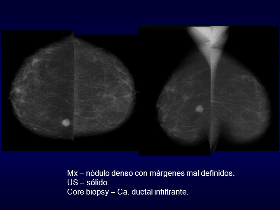 Mx – nódulo denso con márgenes mal definidos.