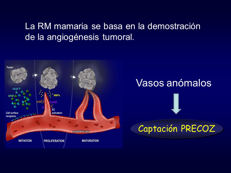 Vasos anómalos La RM mamaria se basa en la demostración