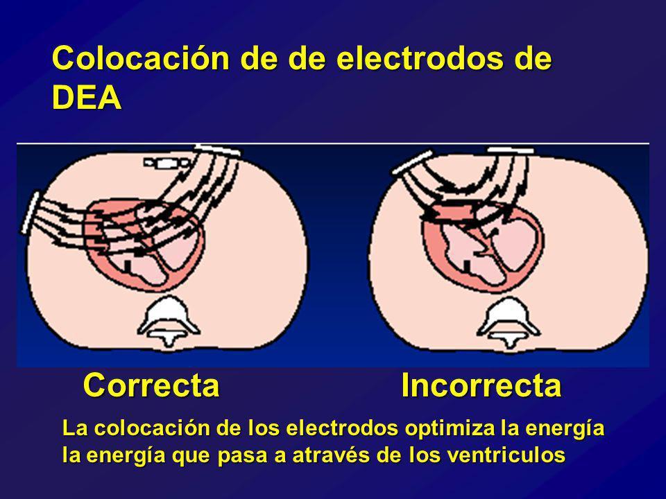 Colocación de de electrodos de DEA