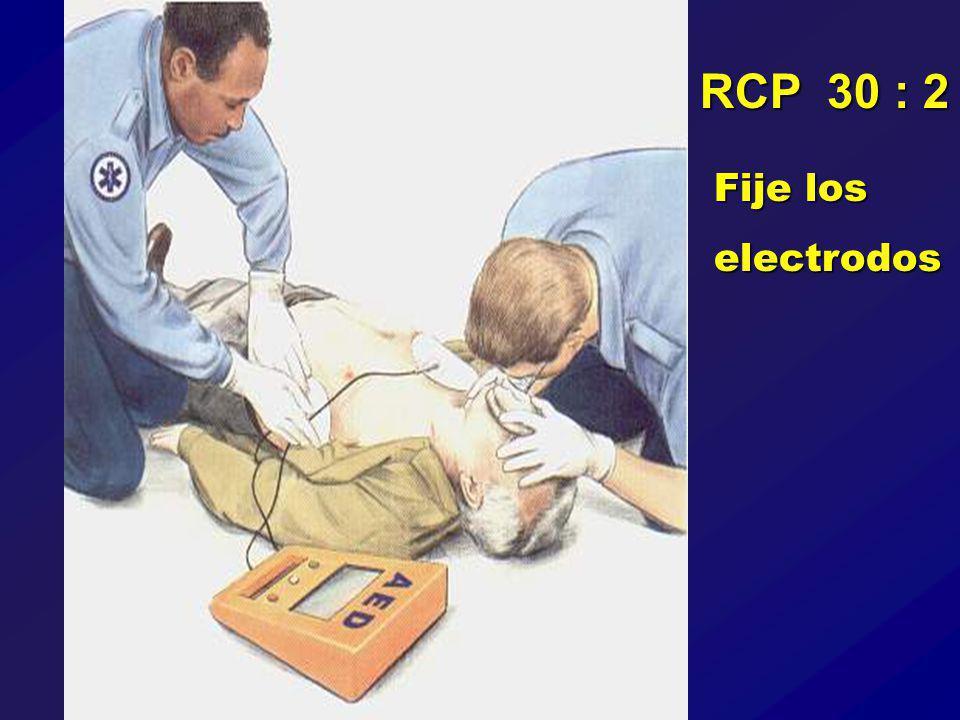 RCP 30 : 2 Fije los electrodos
