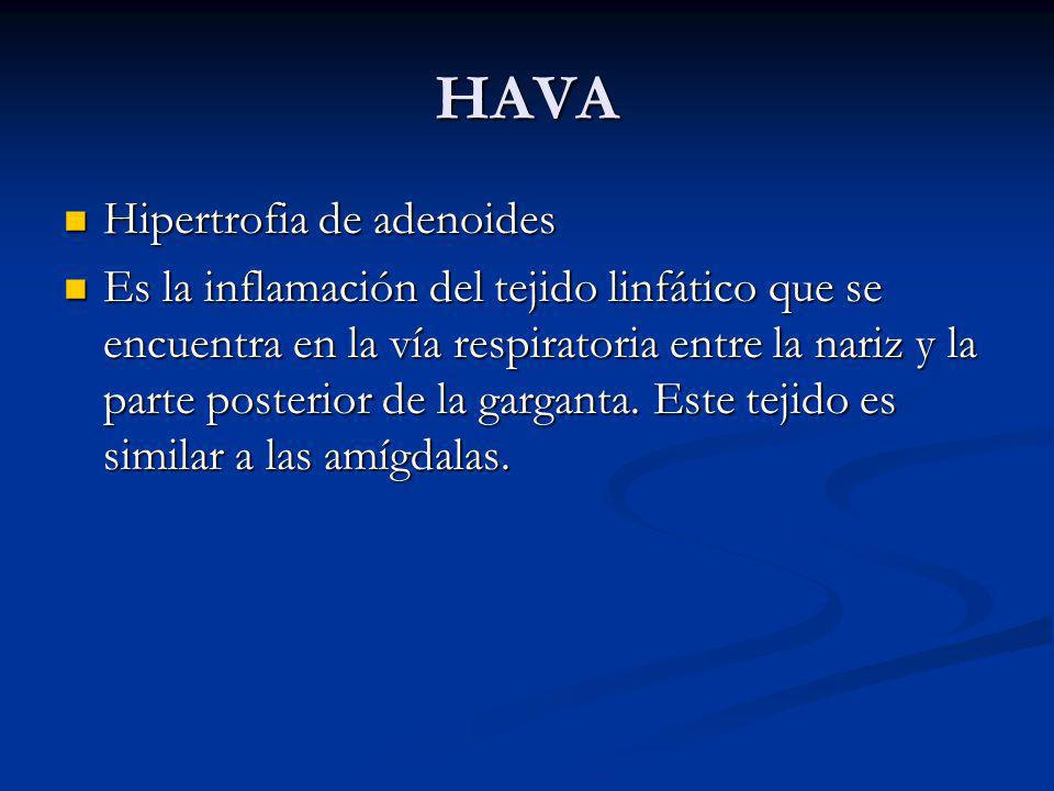 HAVA Hipertrofia de adenoides