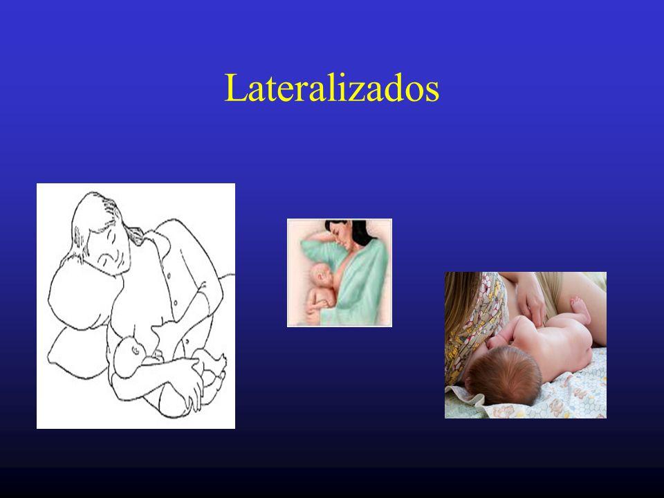 Lateralizados
