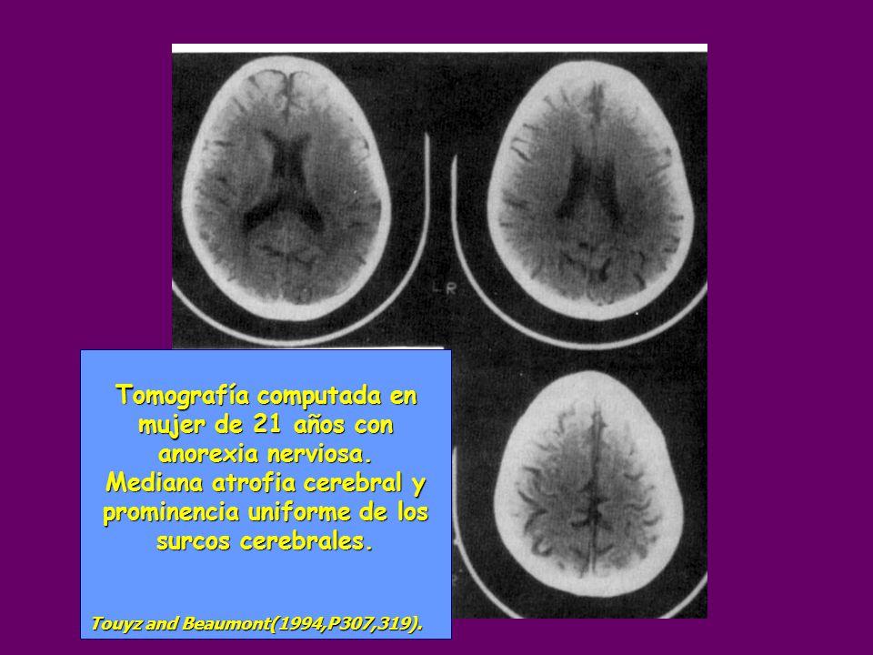 Tomografía computada en mujer de 21 años con anorexia nerviosa.