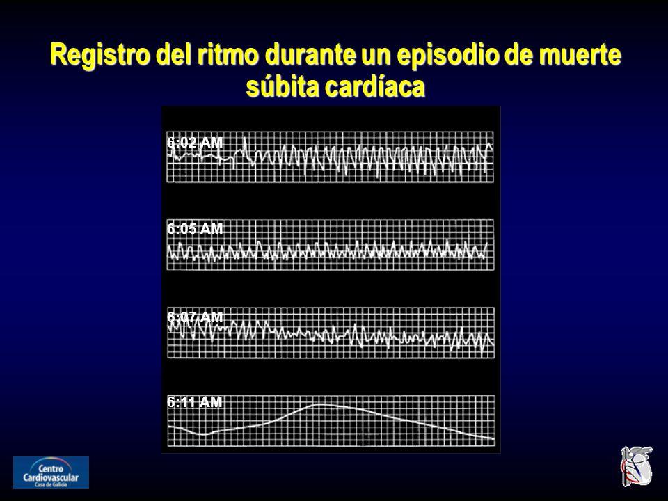 Registro del ritmo durante un episodio de muerte súbita cardíaca