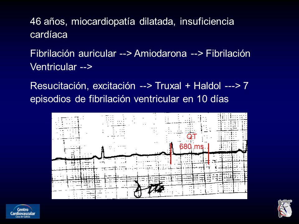 46 años, miocardiopatía dilatada, insuficiencia cardíaca