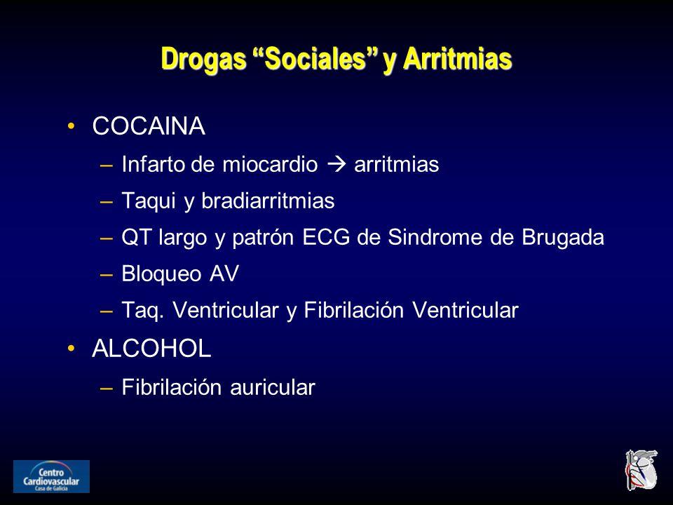 Drogas Sociales y Arritmias