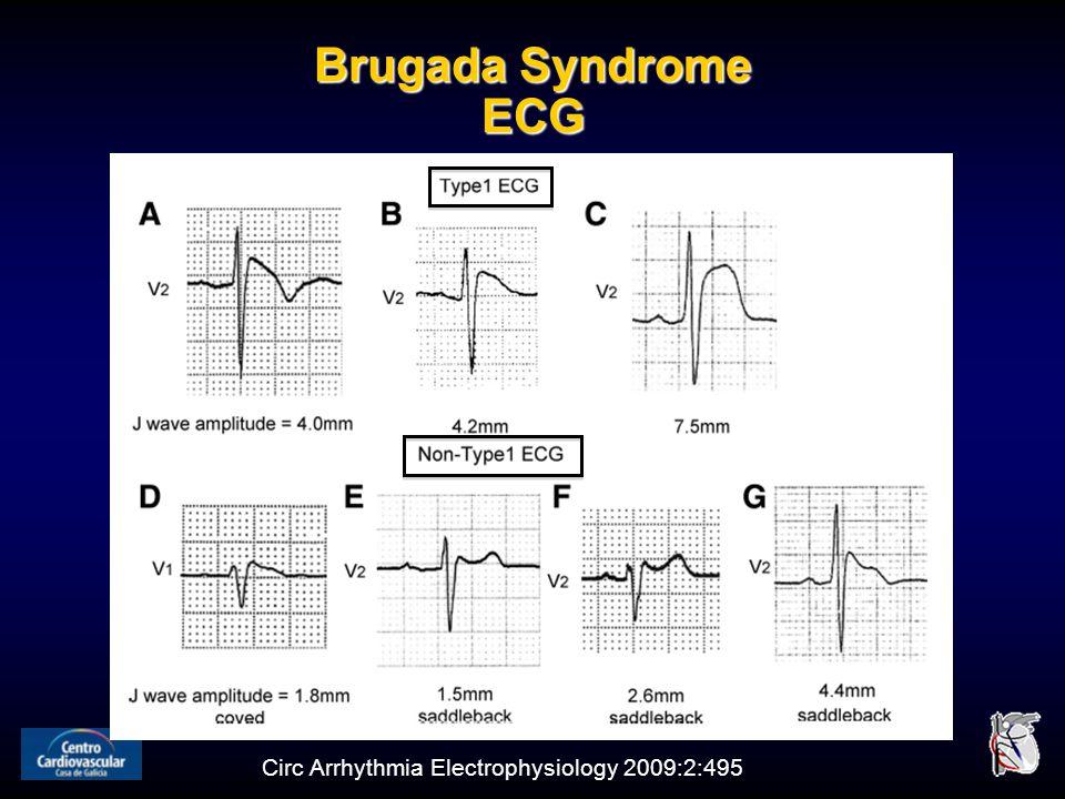 Brugada Syndrome ECG Circ Arrhythmia Electrophysiology 2009:2:495