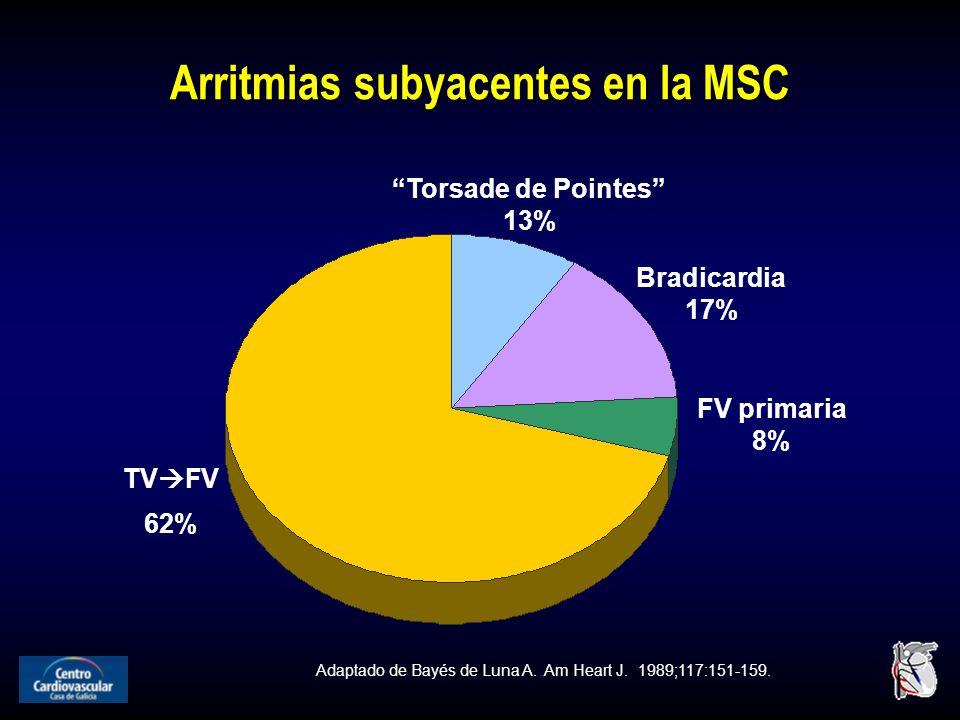 Arritmias subyacentes en la MSC