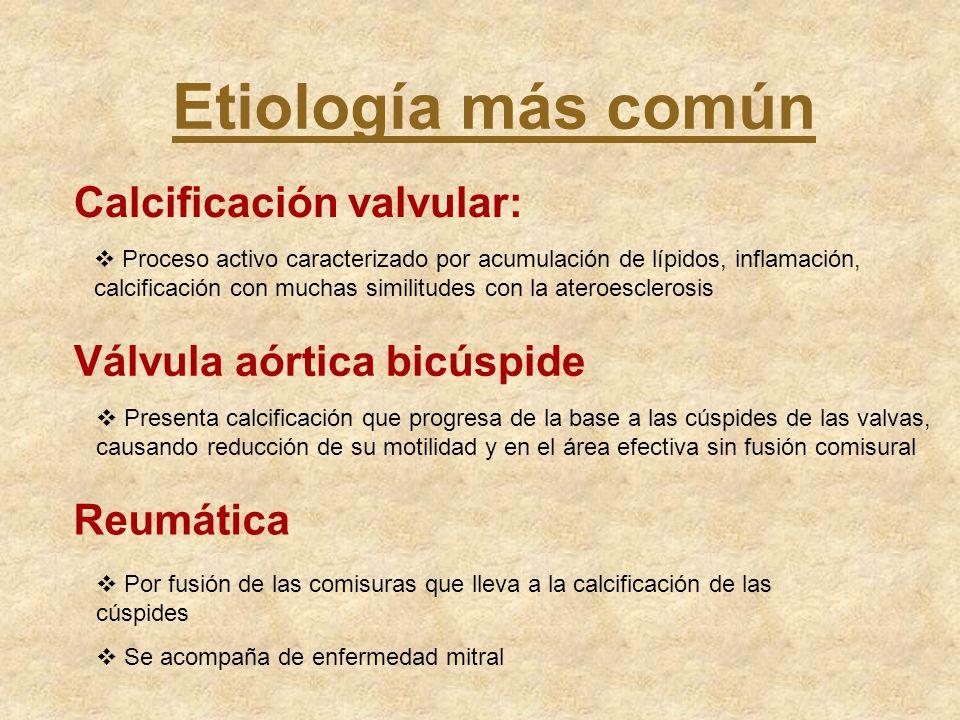Etiología más común Calcificación valvular: Válvula aórtica bicúspide