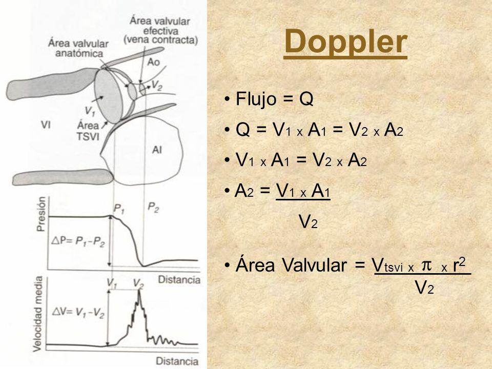 Doppler Flujo = Q Q = V1 x A1 = V2 x A2 V1 x A1 = V2 x A2 A2 = V1 x A1