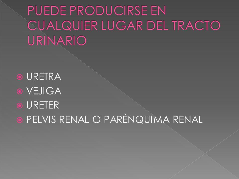 PUEDE PRODUCIRSE EN CUALQUIER LUGAR DEL TRACTO URINARIO