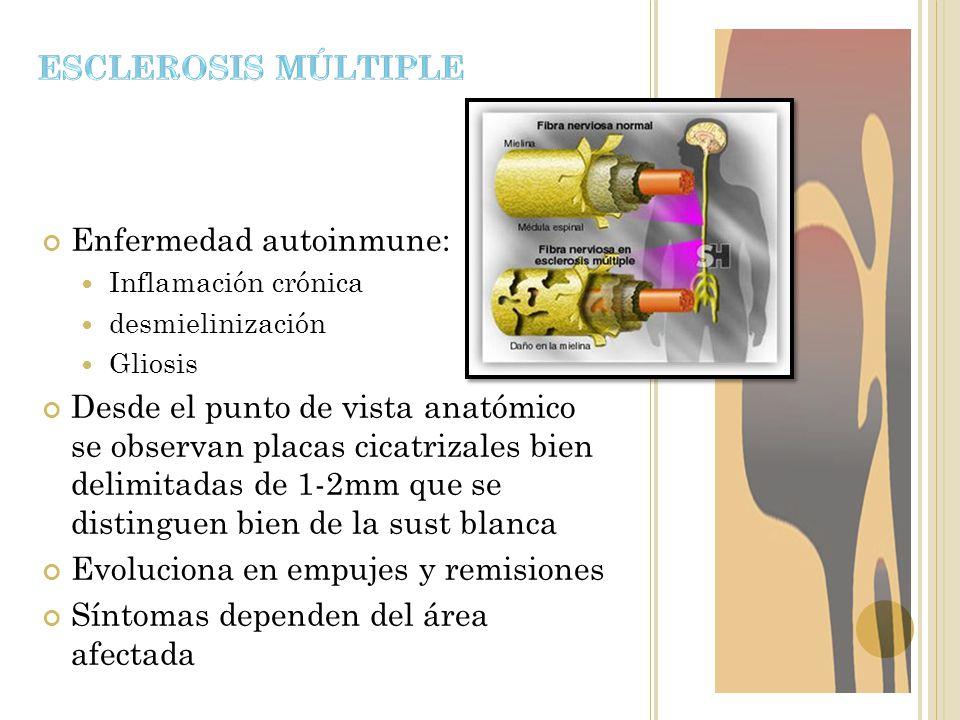 Enfermedad autoinmune: