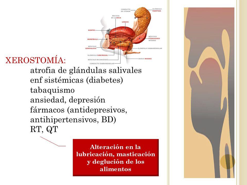 Alteración en la lubricación, masticación y deglución de los alimentos