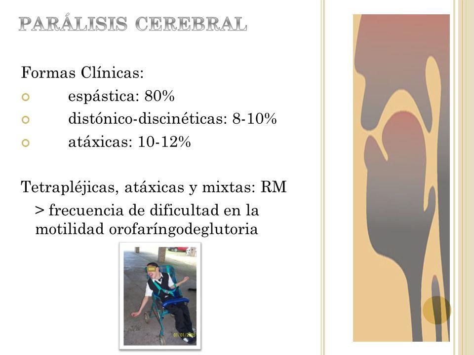 PARÁLISIS CEREBRAL Formas Clínicas: espástica: 80%