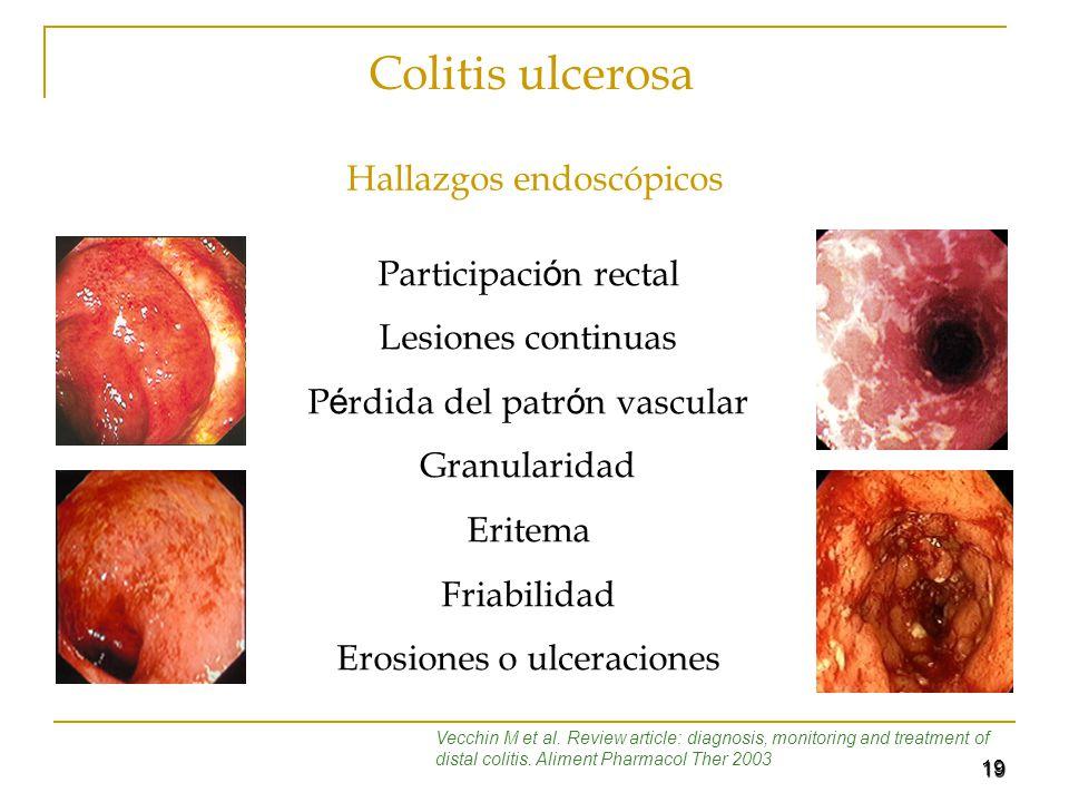 Colitis ulcerosa Hallazgos endoscópicos Participación rectal