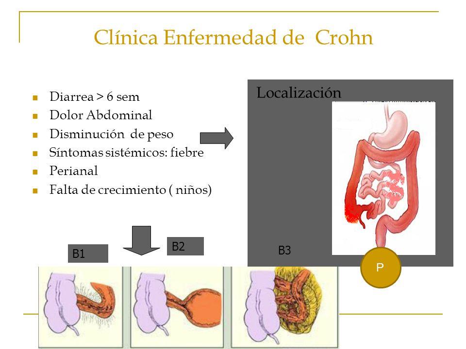 Clínica Enfermedad de Crohn