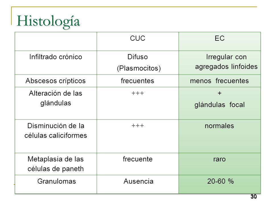 Histología CUC EC Infiltrado crónico Difuso (Plasmocitos)