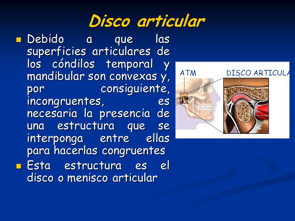 Disco articular