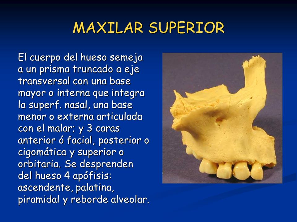 MAXILAR SUPERIOR El cuerpo del hueso semeja a un prisma truncado a eje