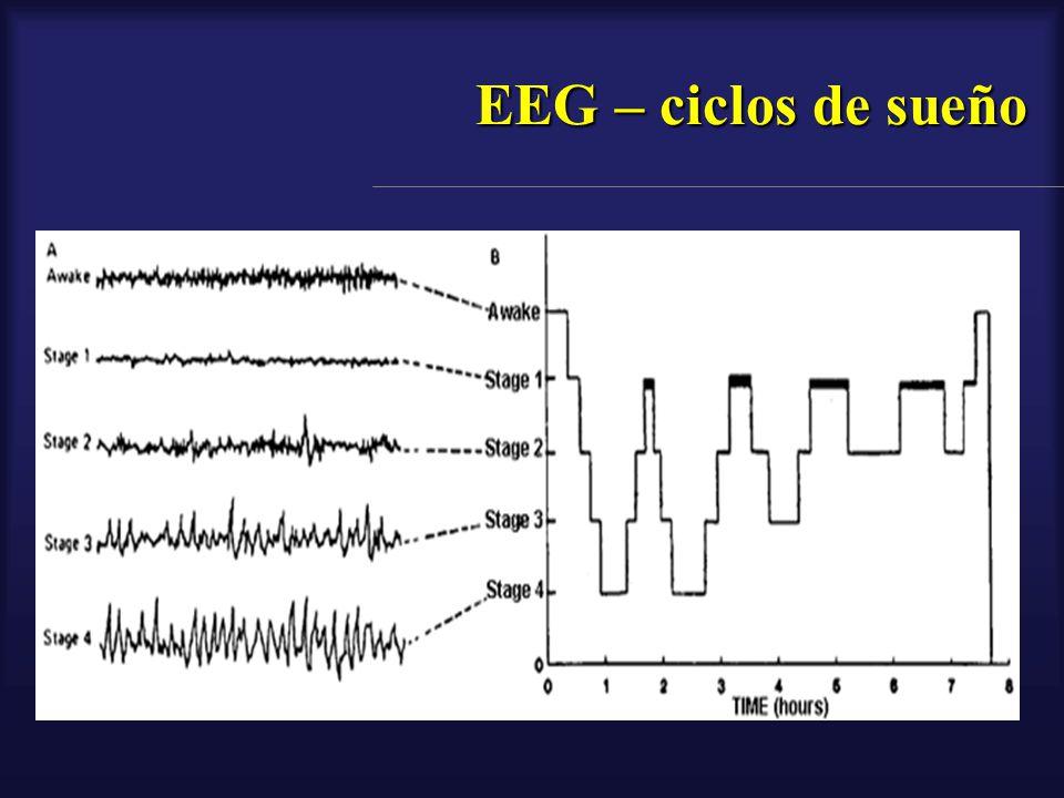 EEG – ciclos de sueño