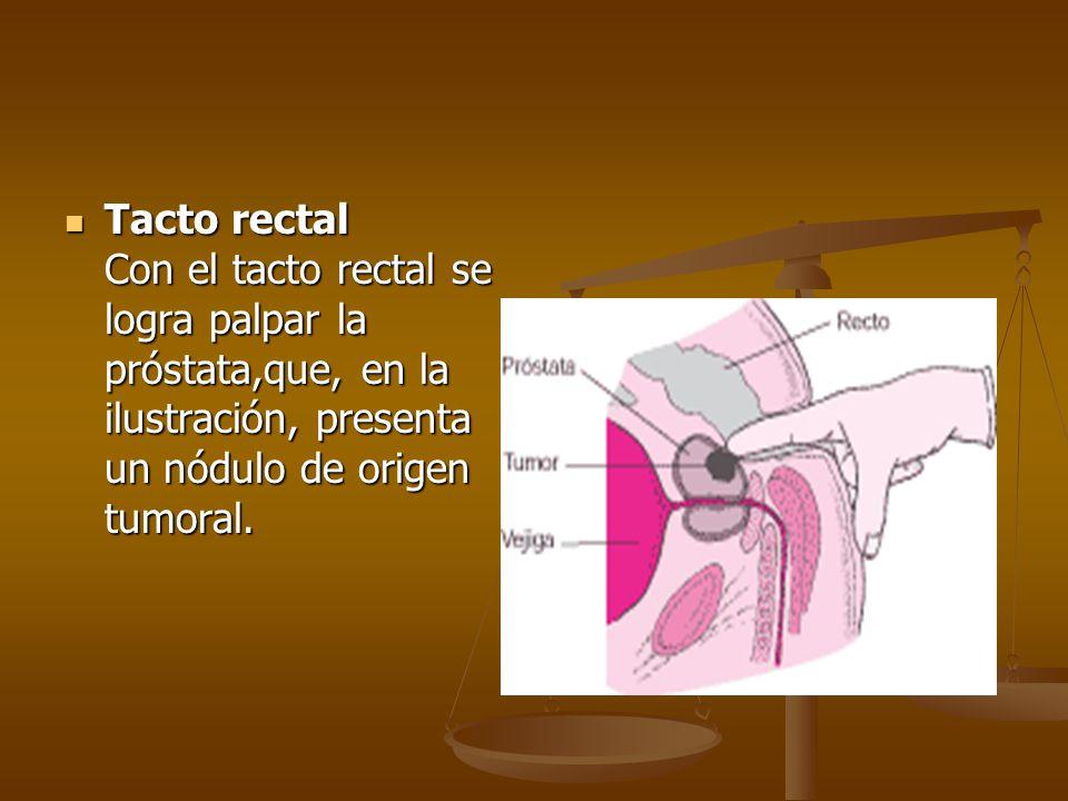 Tacto rectal Con el tacto rectal se logra palpar la próstata,que, en la ilustración, presenta un nódulo de origen tumoral.