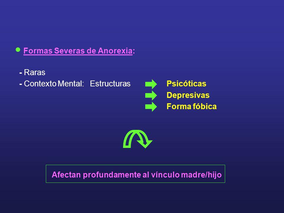 Formas Severas de Anorexia: